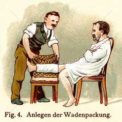 Patient mit Wadenwickel  um 1902