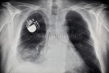 Berlin  Deutschland  Roentgenaufnahme der Lunge eines Mannes mit Herzschrittmacher