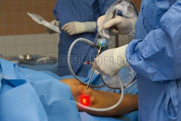 Endoskop bei Knie-Spiegelung im OP