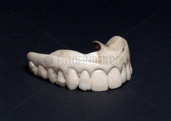 Full upper denture  1801-1860.
