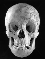 Phrenological head made from a skull  1815-1900.