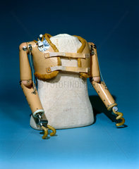 Upper limbs for thalidomide child  1979-81