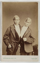 The 'Siamese Twins'  Eng and Chang Bunker  c 1870.