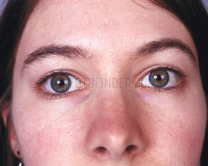 Woman with hazel eyes  May 2000.