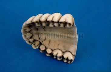 Upper denture  1780-1850.