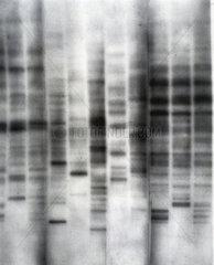 The first genetic fingerprint  1984.