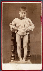 Child with rickets  1870-1910.
