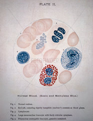 Illustration showing a microscopic view of blood cells  1901.