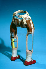 Lower limbs  for thalidomide child  1979-81.