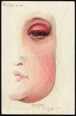Diseased eyelid  1900.