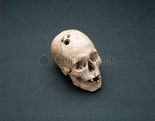 Bronze Age skull  Jericho  Palestine  2200-2000 BC.