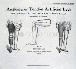 'Anglesea or Tendon Artificial Legs'  1920-1930.