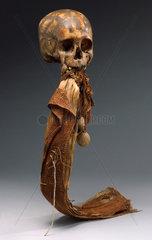 Human skull  Andaman Islands  1871-1920.