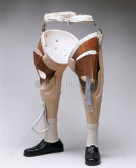 Pair of non-articulated metal legs for a male Thalidomide teenager  1975.