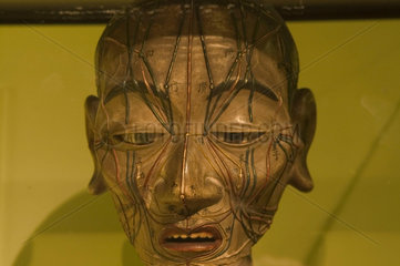 Head of an acupuncture figure  Chinese  late Ming dynasty  c 17th century.