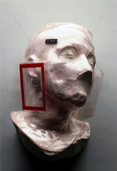Face mould for administering radiotherapy  c 1965.