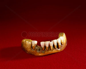 Full lower denture  English  1801-1860.