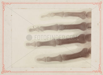 X-ray of part of a human hand  1895-1915.