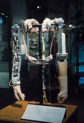 Thalidomide prosthetic arms  early 1960s.