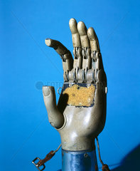 Prosthetic hand with moveable fingers  1979