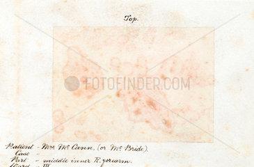 A skin disease  1901-1902.