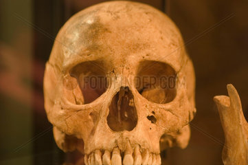 Skull showing the effects of leprosy  Denmark  c 1350.