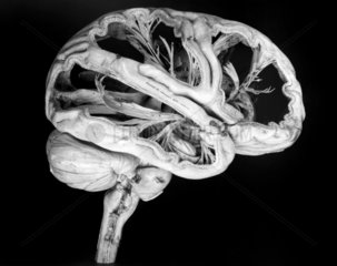 Model of a human brain  French  c 1825.