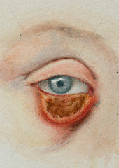 Syphilitic condition of lower eyelid  1891-1920.