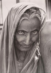 The partly blind wife of a beggar  East Pakistan  1963.