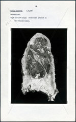 Post-mortem photograph of diseased lung  c 1965.