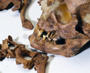 Bleadon Man's skull  1999.