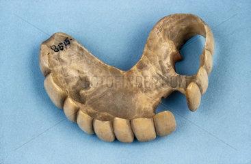 Partial upper denture  1820-1870.