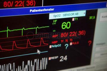 Essen  Deutschland  ein Vitaldatenmonitor auf der Intensivstation eines Krankenhauses