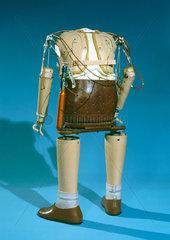 Prosthetic limbs  thalidomide child  1979-8