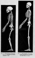 Two representations of skeletons  1913.