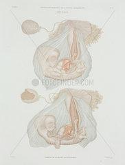 Human foetus at 40 days  c 1847-1859.