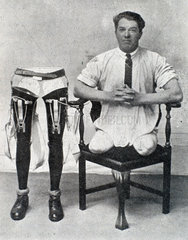 Man with amputated legs sitting beside a set of artificial legs  1920-1930.