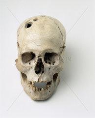 Bronze Age trepanned skull  Jericho  Palestine  2200-2000 BC.