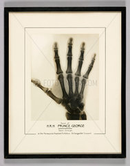 X-ray of the right hand of Prince George  1932.