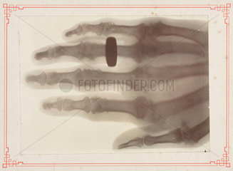 X-ray of a human hand  1895-1915.