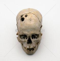 Trepanned Bronze Age skull  2200-2000 BC.