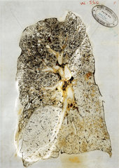 Laminated section of diseased lung tissue  1978.