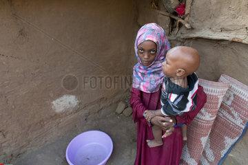 Kakuma  Kenia - Junges Maedchen mit Kind auf dem Arm im Fluechtlingslager Kakuma.
