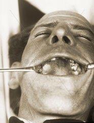 Patient beim Zahnarzt 1925