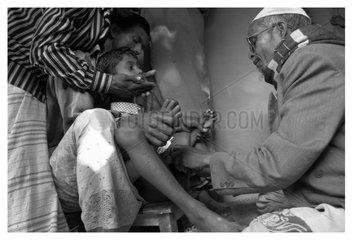 A man prepares for circumcision