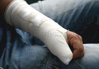 Gipshand