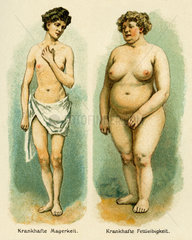 Essstoerungen  Magersucht  Bulimie  1909