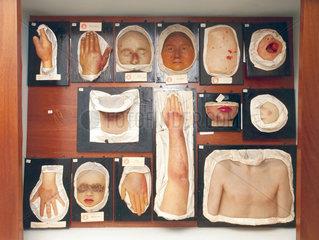 Moulagen von Hautkrankheiten