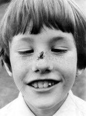 kleiner Frosch auf der Nase eines Jungen