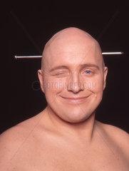 Glatze mit Nadel Kaethe be